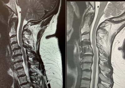 C4-5 pre and post-op MRI