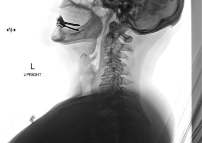 C4-5 stenosis x-ray (pre-op)