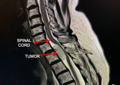 Thoracic Spinal cord tumor MRI