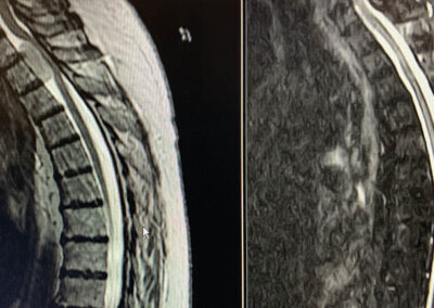 Thoracic Spinal cord tumor MRI pre & post surgery