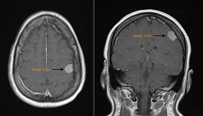 MRI benign brain tumor (Meningioma)