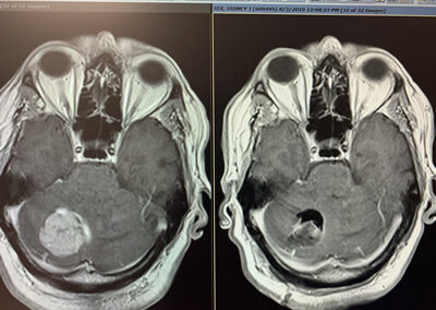 Brain tumor MRI before & after Surgery top view.