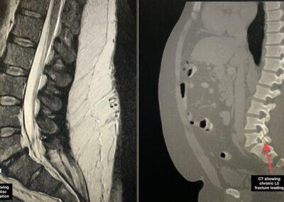 L5-S1 TLIF pre-op MRI & CT