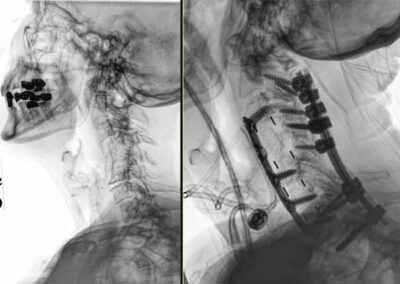 Xrays-Before-and-after-surgery